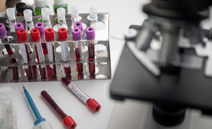 piano vaccinazione nazionale